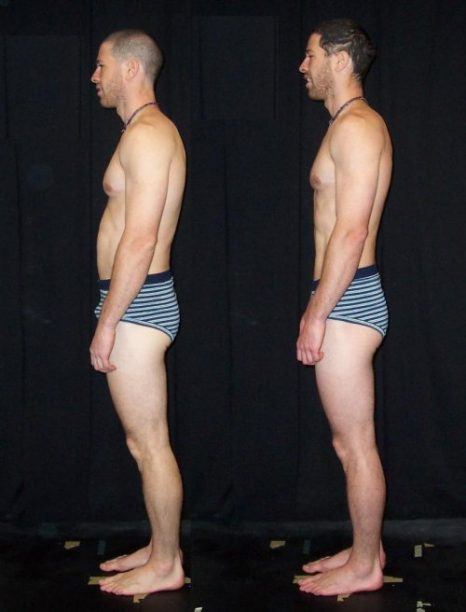 Rolfing Before & After Side